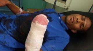 Cortan mano a un joven durante incidente en La Romana