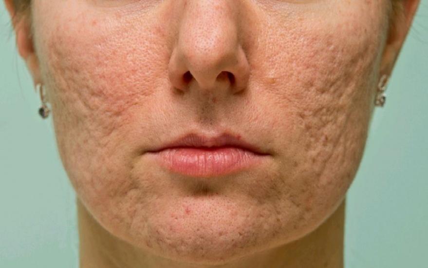 ¿Sabías que el acné es causado por una bacteria? Descubre aquí cómoeliminarla
