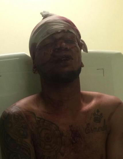 Vinculado a heridas a DavidOrtiz tiene registropordrogas, según la PN