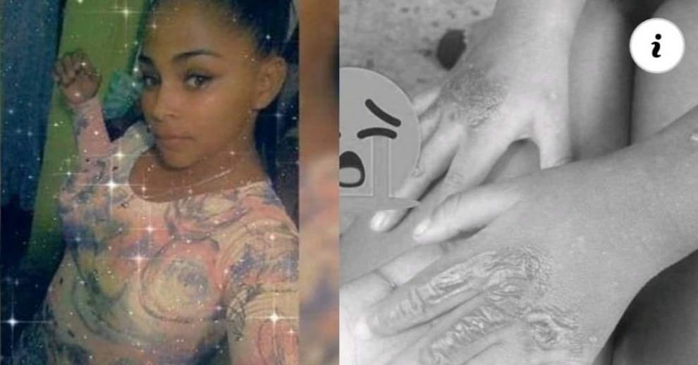 Tres meses de prisión preventiva a madre acusada de quemar manos de su hija en Santo Domingo
