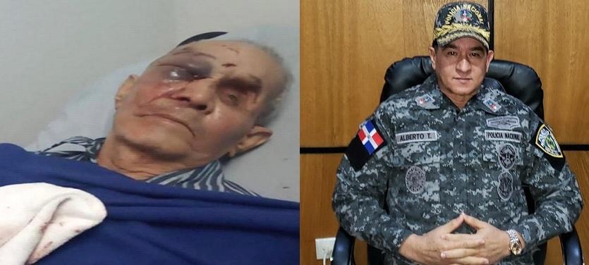 Condenan golpiza a hombre 85 años en Santiago; demandan apresamiento y castigo para agresor